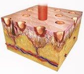 Skin resurfacing frazionato